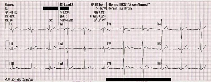 Ce este electrocardiograma (EKG sau ECG)?