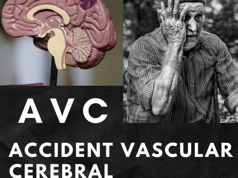 Accidentul vascular cerebral (AVC)