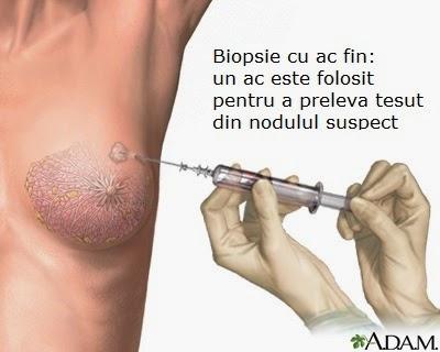 Ce este o biopsie? De ce e necesară