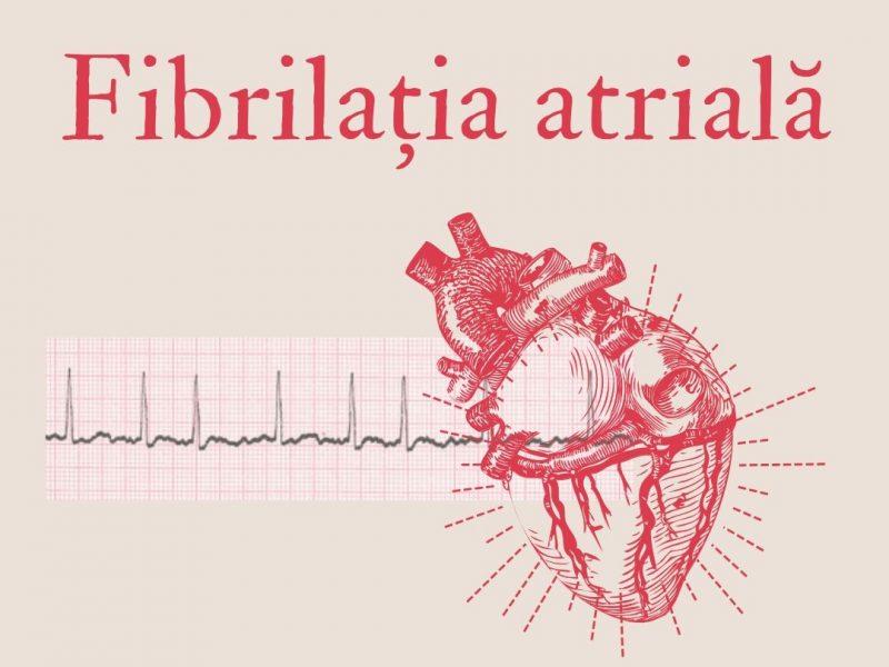 Fibrilația atrială – diagnostic, tratament, riscuri