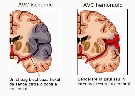poate scădea în greutate cauza accidentului vascular cerebral ceaiuri care ard metabolismul de grăsime și stimulează