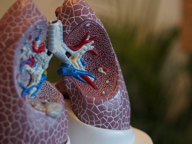Cât de gravă poate fi o pneumonie?